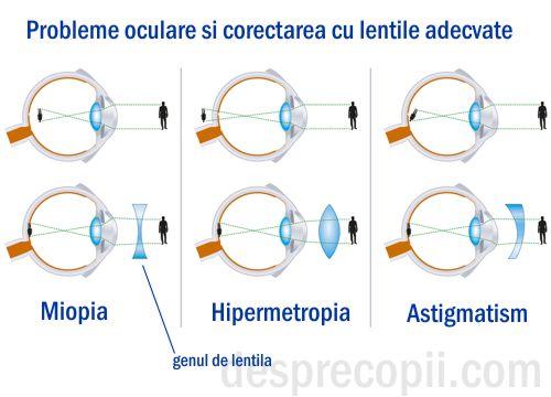 cum să restabiliți vederea dacă este hipermetropie