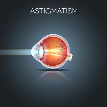 Motivul pentru care astigmatismul se vindecă natural