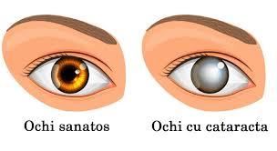 Cataracta: dupa operatie e posibil sa fie necesari ochelari pentru citit!