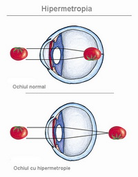 viziune de aproape cu cataractă
