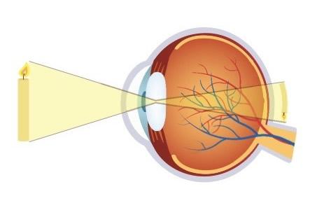 dacă vederea este refractată
