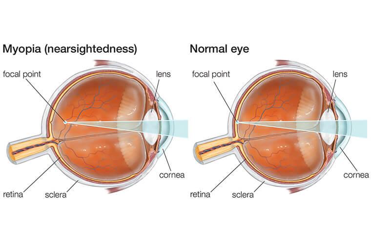 îmbunătățirea vederii proaste