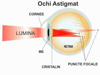 PCR oftalmologie vedere incetosata dimineata