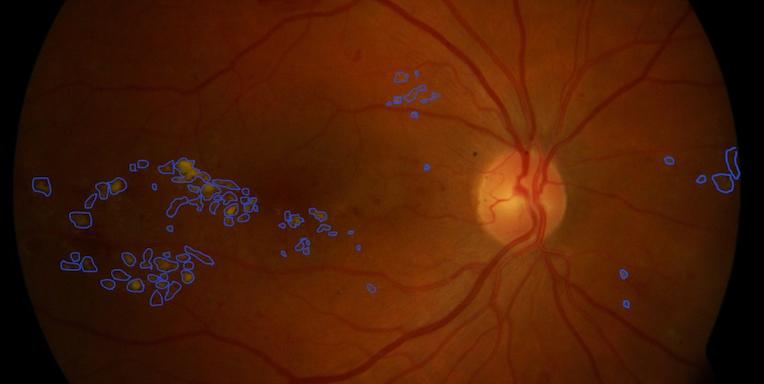 cataractă cu deficiențe de vedere