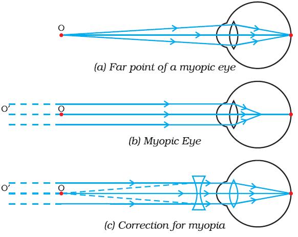 diagrama miopiei cărți pentru teste de vedere