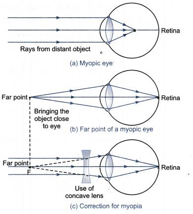 diagrama miopiei metoda de tratare a vederii