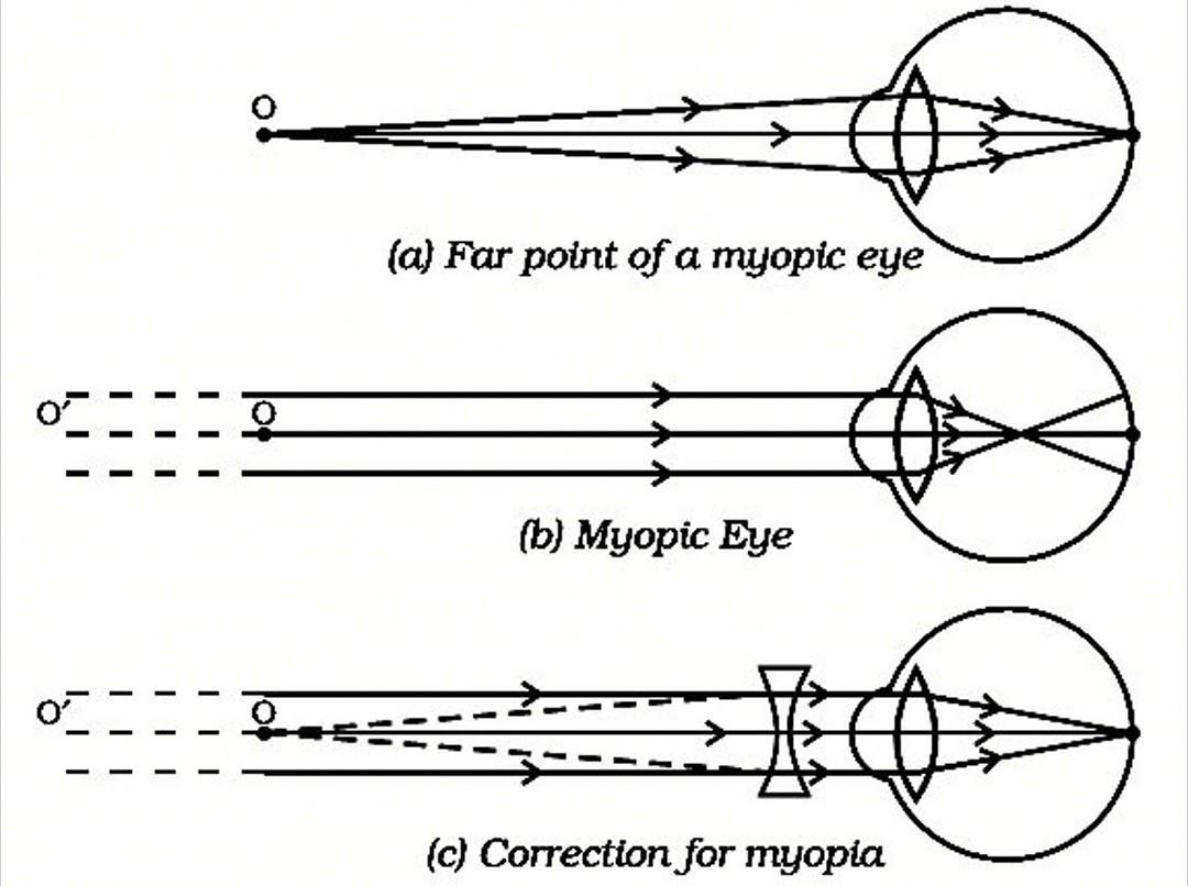 diagrama miopiei cum să recâștigi 100 de vedere