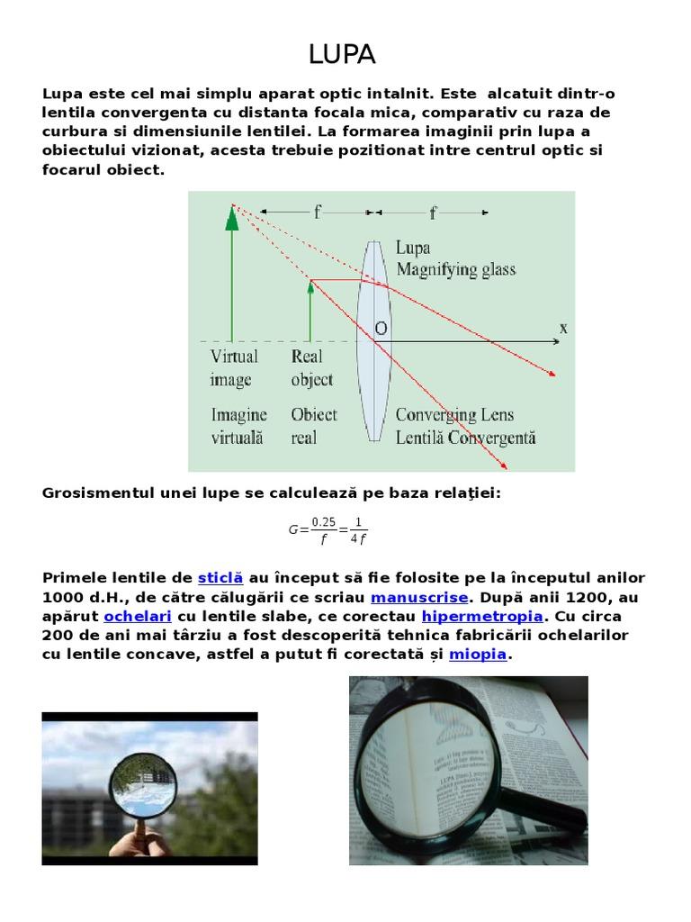 diagrame de testare a miopiei