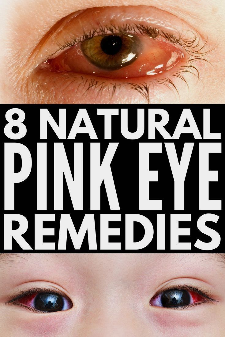 diverse boli oculare acasă exerciții pentru vedere
