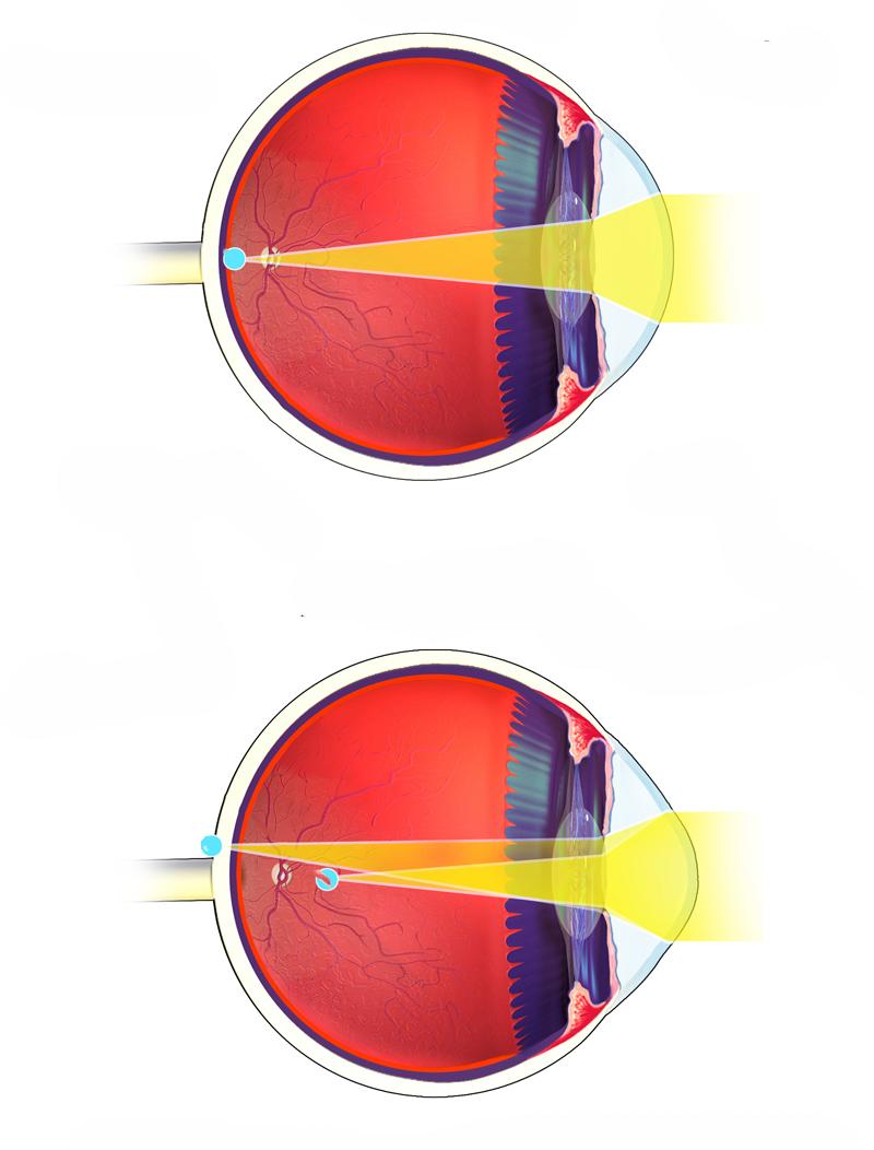 miopia complicată viziunea cu cicuta
