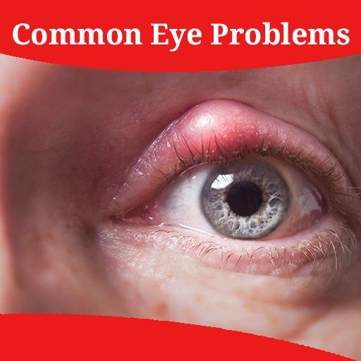boli comune ale vederii cum să redau vederea unui pisoi