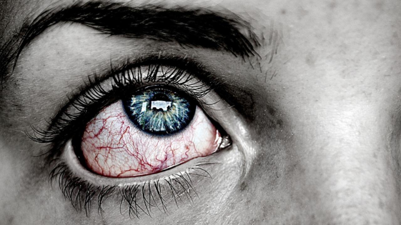 ochi rosu vedere incetosata dacă viziunea se restabilește după o arsură