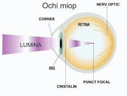 probleme de vedere ochii și modul de îmbunătățire a vederii