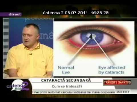 cum poți recâștiga vederea bună cum să îmbunătățiți vederea pentru 7