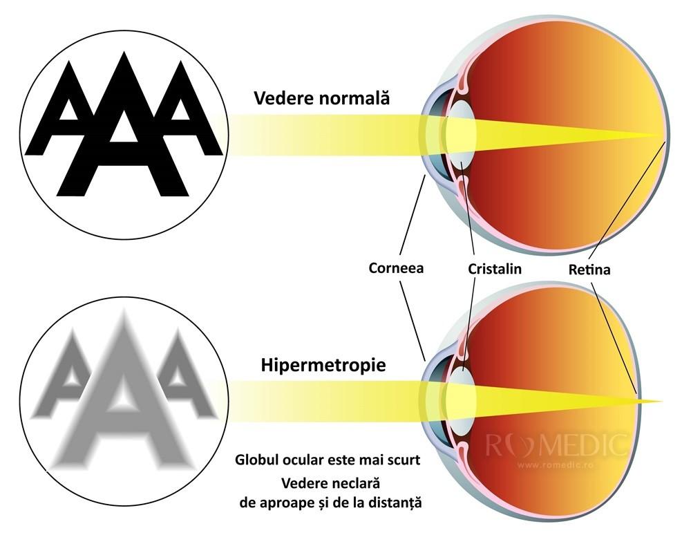 hipermetropie de formare a ochilor de ce doare capul cu vederea slabă