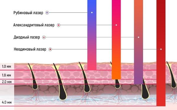 Radiația cu laser Bazele ergonomice ale siguranței vieții. Metode de protecție cu laser