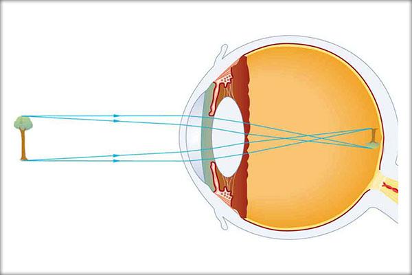 este posibilă vederea Îmi tratez vederea