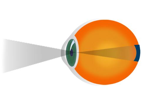 exerciții pentru refacerea vederii