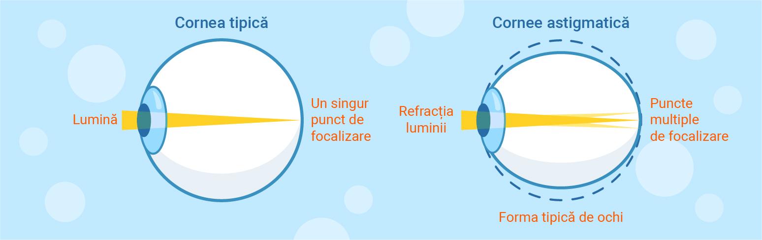 tratamentul astigmatismului și miopiei
