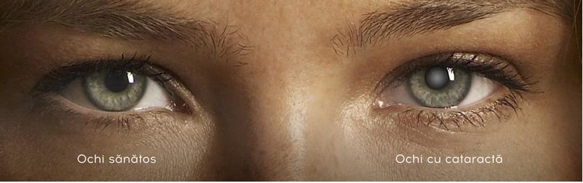 Vă micșorează vederea după operație