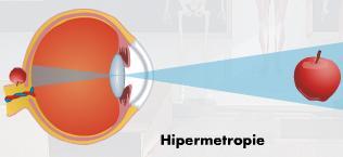Hipermetropia: cauze, diagnostic și tratament