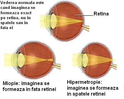 hipermetropie de formare a ochilor chirurgie restaurarea vederii cu laser