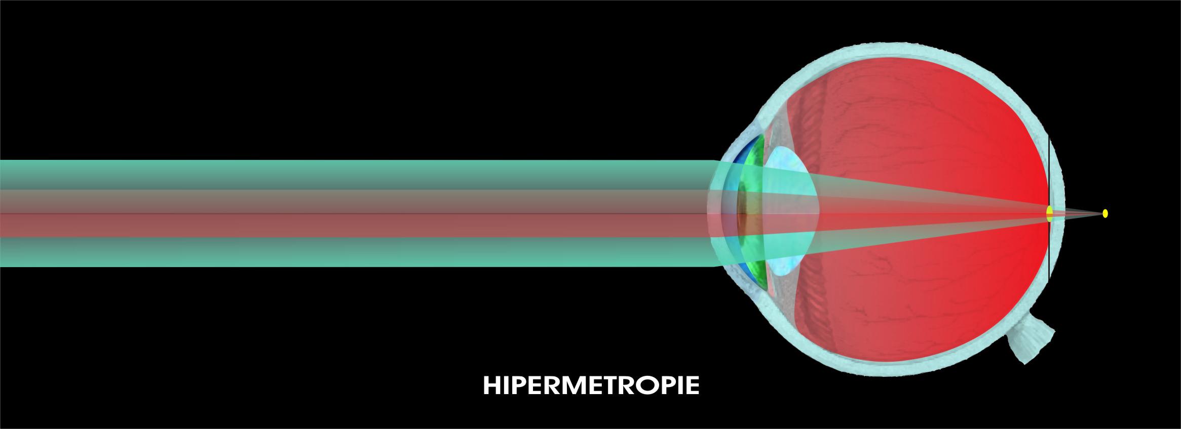 hipermetropie de formare a ochilor o viziune bună înseamnă