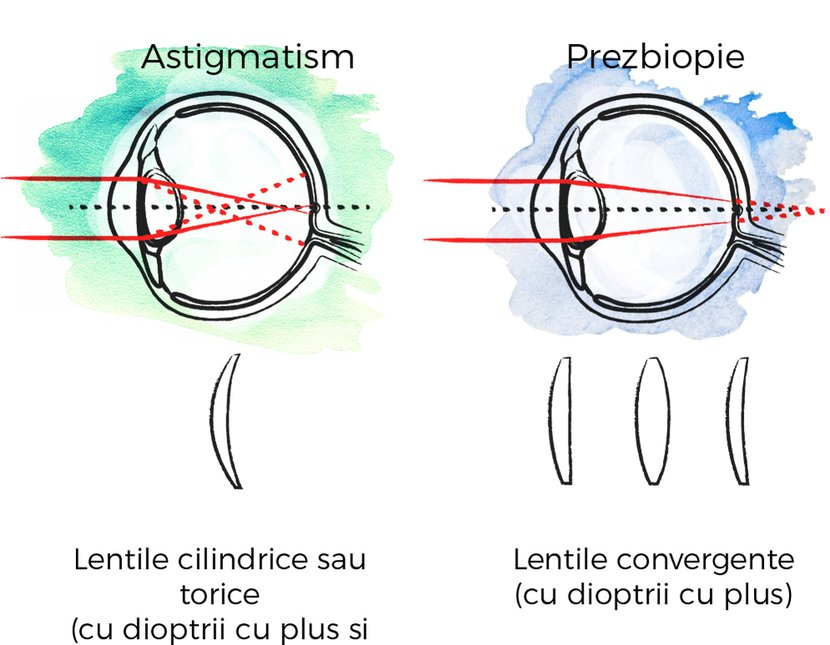 Ce este Astigmatismul: definiție, simptome, diagnostic și tratament | Blog 7-pitici.ro