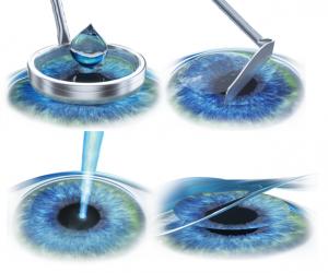 laser pentru vedere