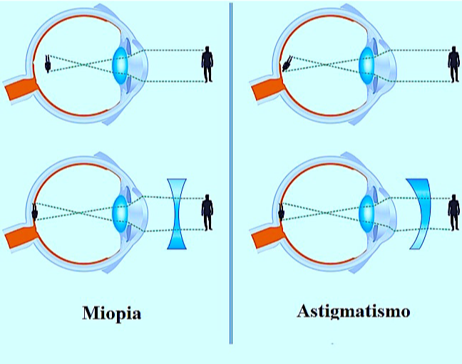 miopia astigmatismo