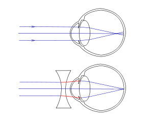 Miopie - Wikipedia