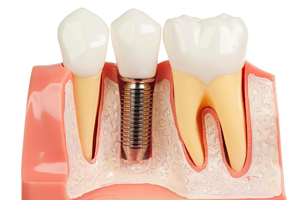 nervul și vederea dentară