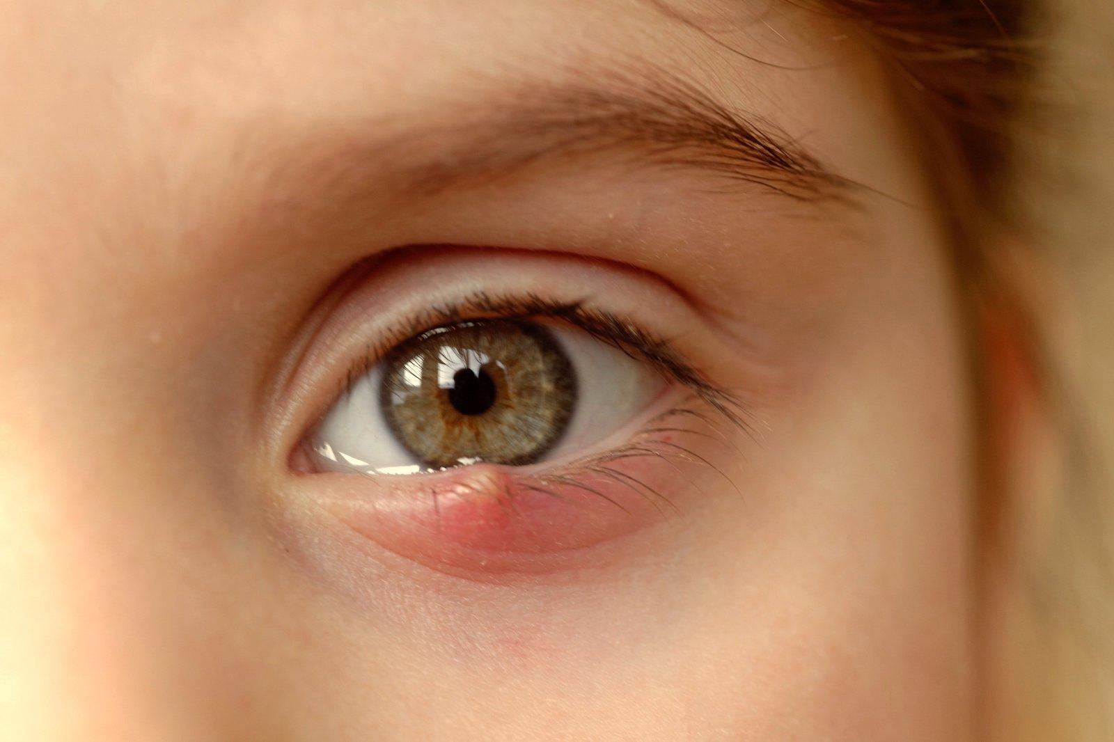 oboseala ochilor înseamnă