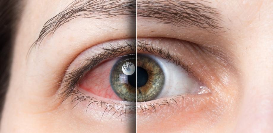 Herpesul ocular poate cauza pierderea vederii?