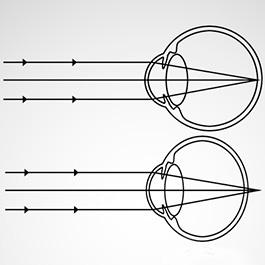 principală instituție oftalmologică îmbunătățește vederea miopiei