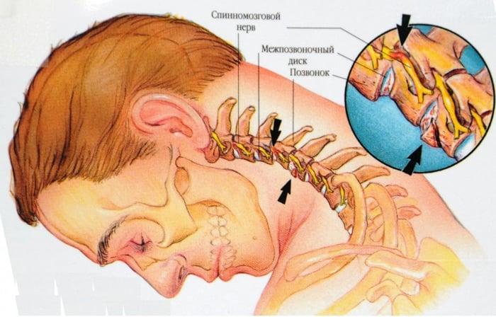 osteocondroza cervicală și vederea valorile indicatorilor de viziune