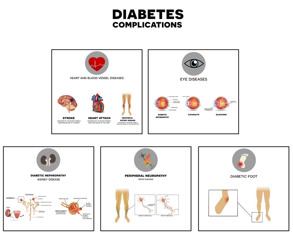 Diabetul afectează vederea - Vitreum - Centru medical oftalmologic