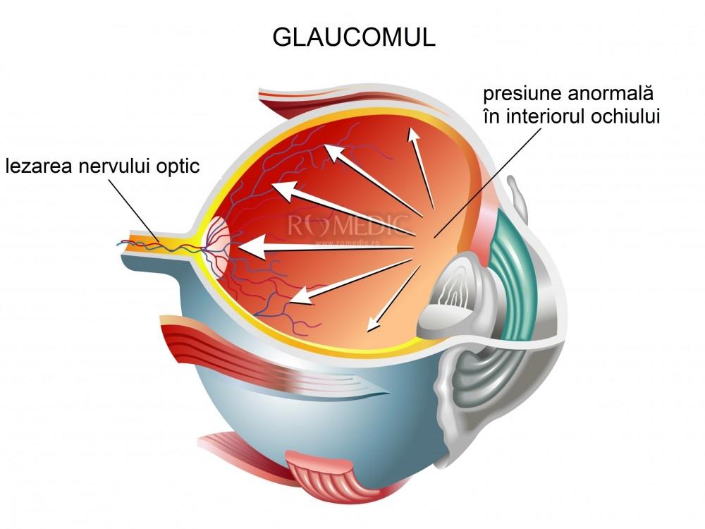 intervenție chirurgicală pentru a preveni vederea încețoșată cum să vindeci miopia pe cont propriu
