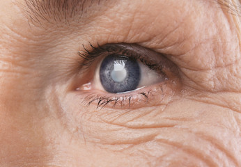 Cataracta Chirurgie complicatii - Sănătate -