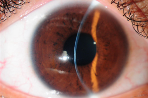 refacerea keratoconusului vizual