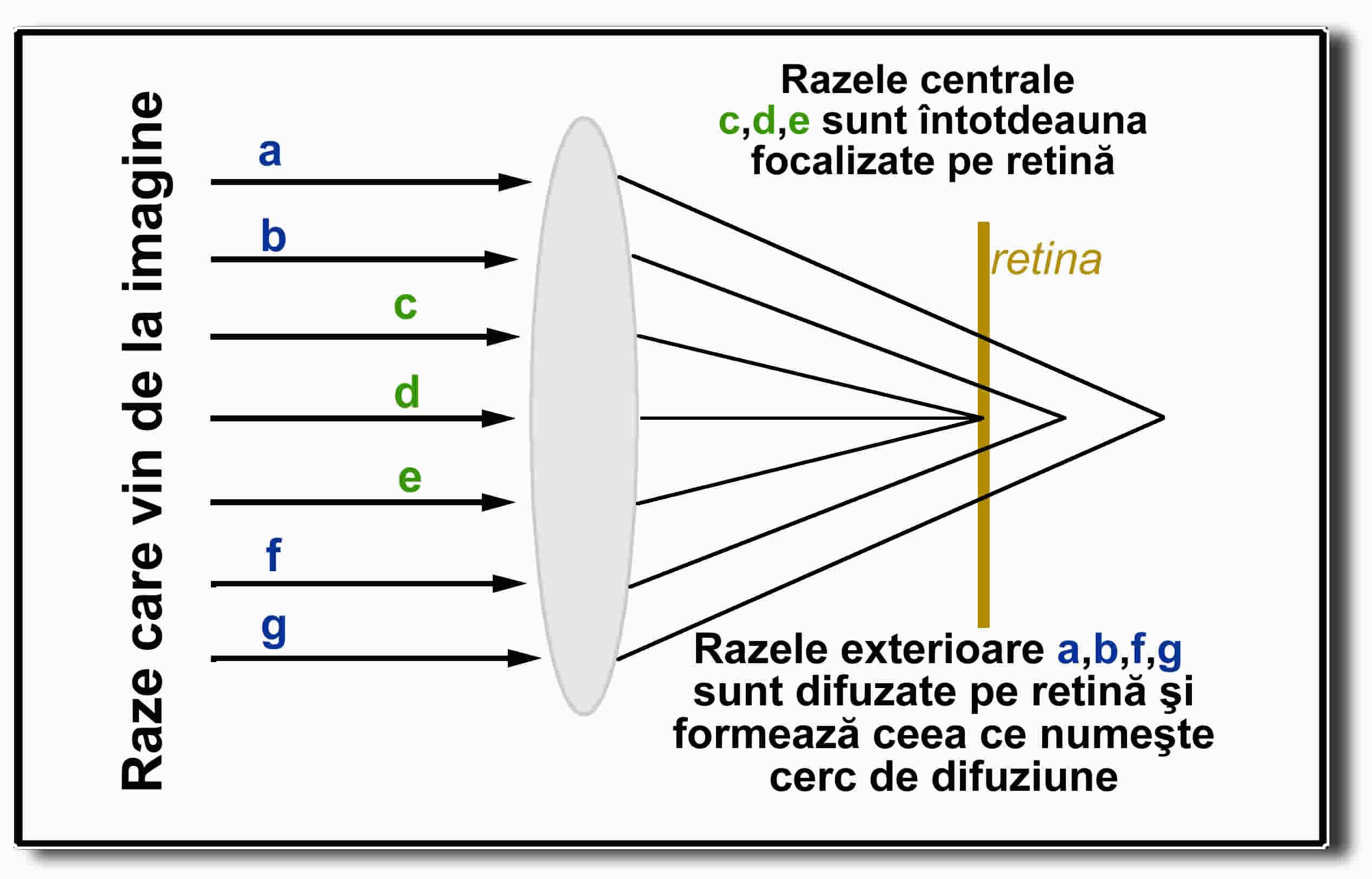 aveți astigmatism de miopie cum se îmbunătățește vederea 5 miopia