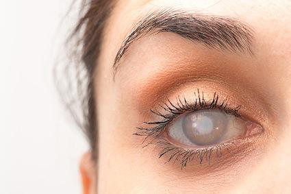 restaurarea cataractei și a vederii
