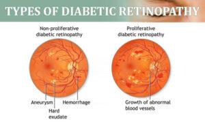 Retinopatia Diabetica (simptome, pret operatie)