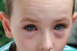 Cum sa previi afectiunile oculare