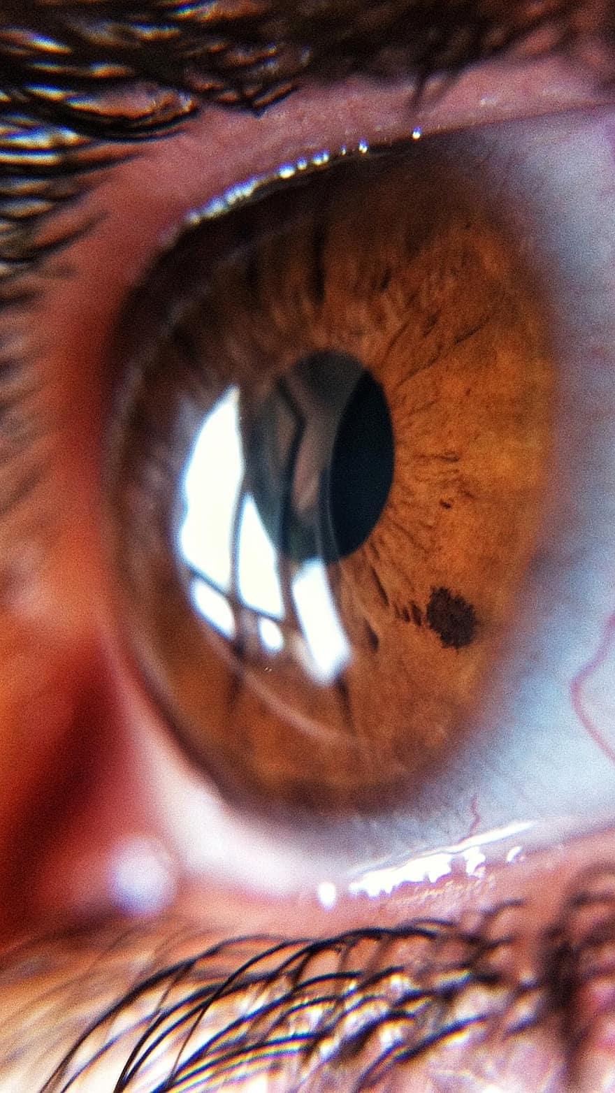 sofradex îmbunătățește vederea cineva a redat vederea