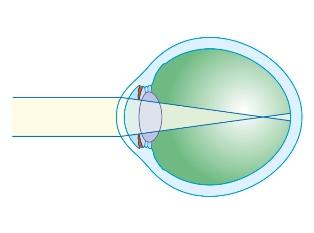provoacă miopie care a restabilit viziunea după bates