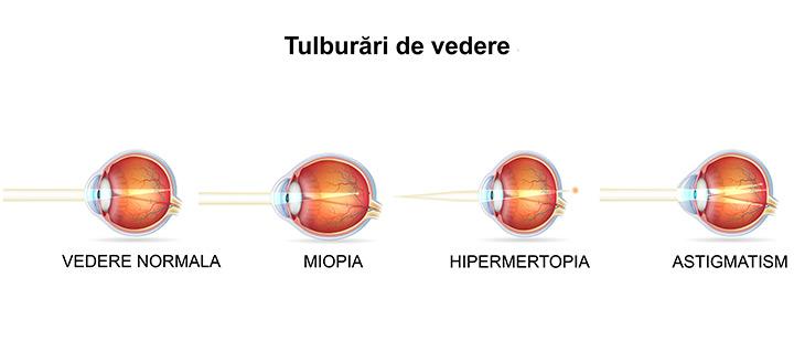 Miopie congenitală la copii