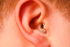 Infecția urechii (urechea medie) - 7-pitici.ro