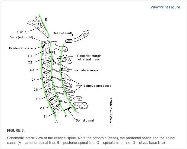 deplasarea vederii vertebrelor cervicale
