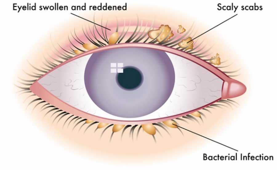 vedere la blefarită îmbunătățirea naturală a vederii conform metodei bates